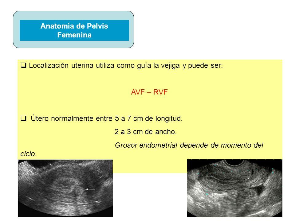 º Imágenes del Útero Significativo para el Dx de leiomiomas (submucosos, intramurales, subserosos.