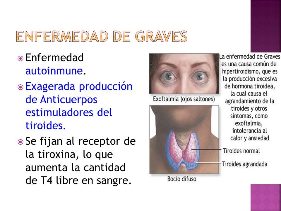 Enfermedad autoinmune. Exagerada producción de Anticuerpos estimuladores del tiroides. Se fijan al receptor de la tiroxina, lo que aumenta la cantidad