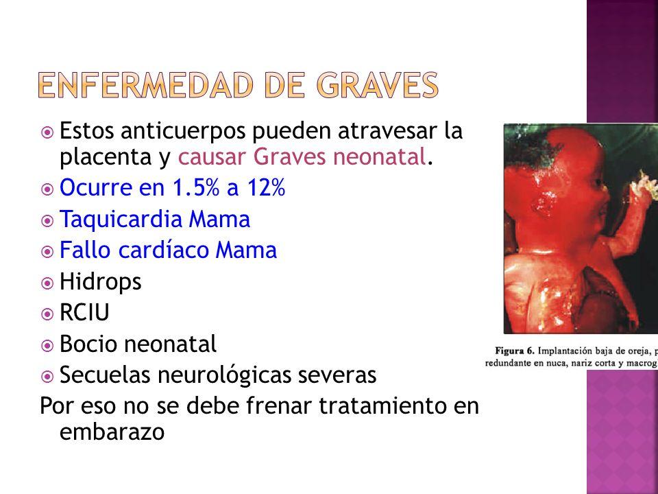 Estos anticuerpos pueden atravesar la placenta y causar Graves neonatal. Ocurre en 1.5% a 12% Taquicardia Mama Fallo cardíaco Mama Hidrops RCIU Bocio