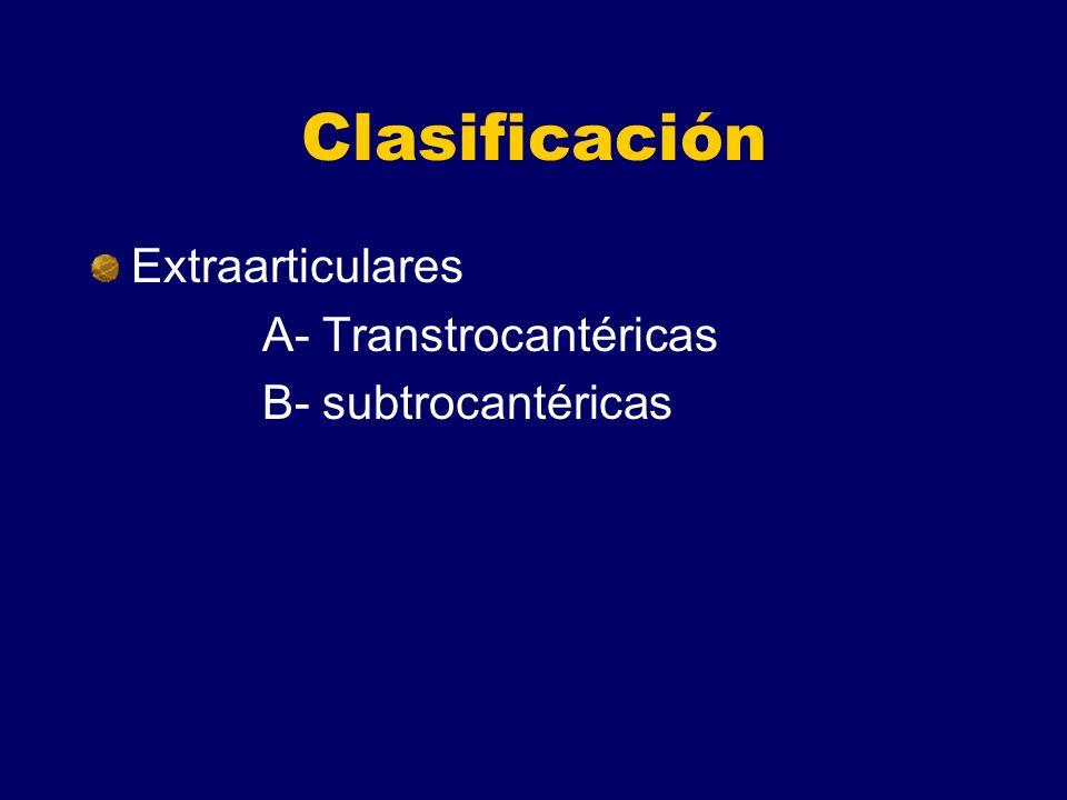 Clasificación Extraarticulares A- Transtrocantéricas B- subtrocantéricas