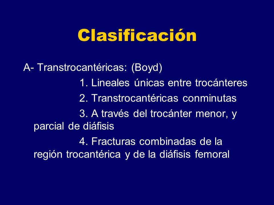 Clasificación A- Transtrocantéricas: (Boyd) 1. Lineales únicas entre trocánteres 2. Transtrocantéricas conminutas 3. A través del trocánter menor, y p