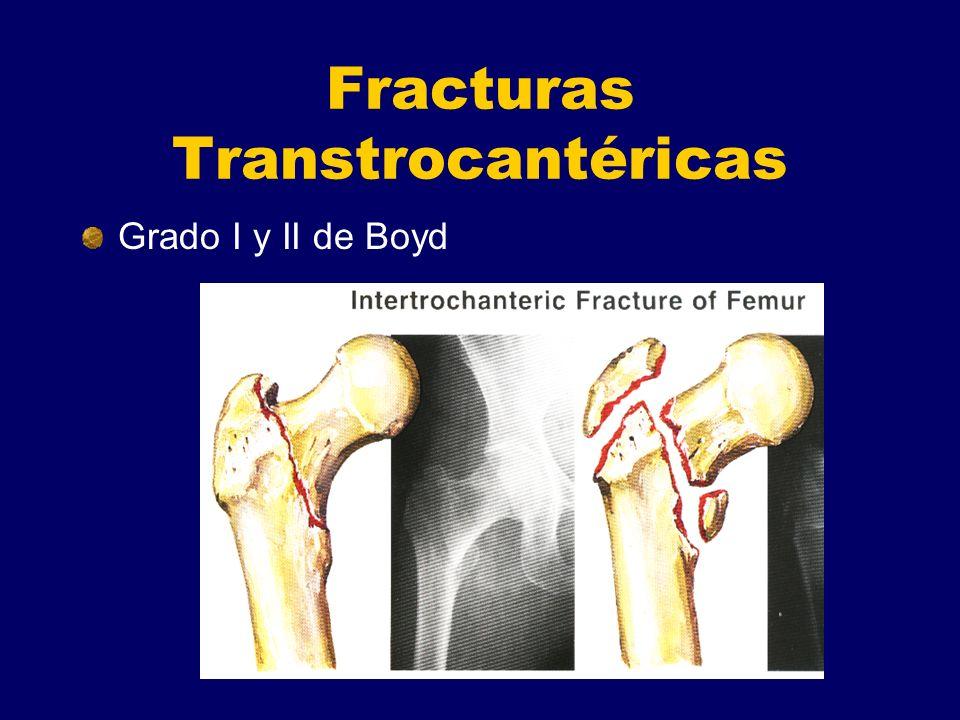 Fracturas Transtrocantéricas Grado I y II de Boyd