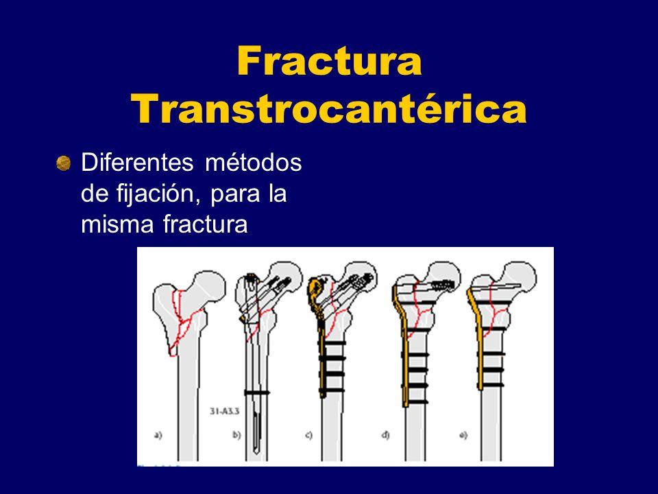 Fractura Transtrocantérica Diferentes métodos de fijación, para la misma fractura