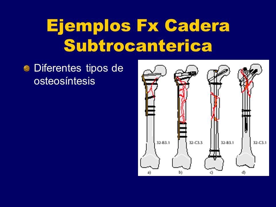 Ejemplos Fx Cadera Subtrocanterica Diferentes tipos de osteosíntesis