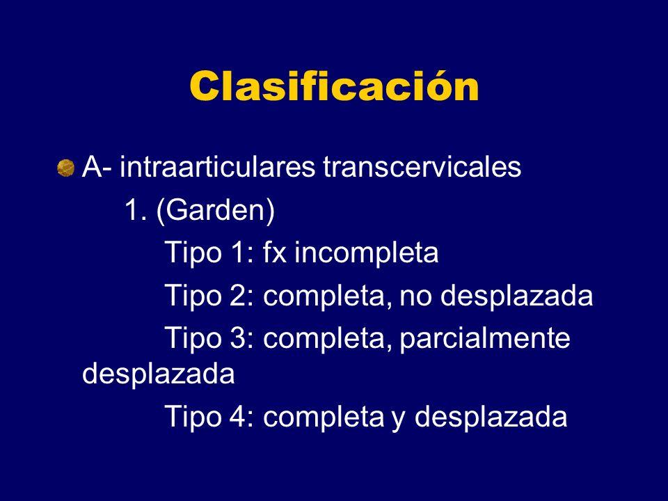 Clasificación A- intraarticulares transcervicales 1. (Garden) Tipo 1: fx incompleta Tipo 2: completa, no desplazada Tipo 3: completa, parcialmente des