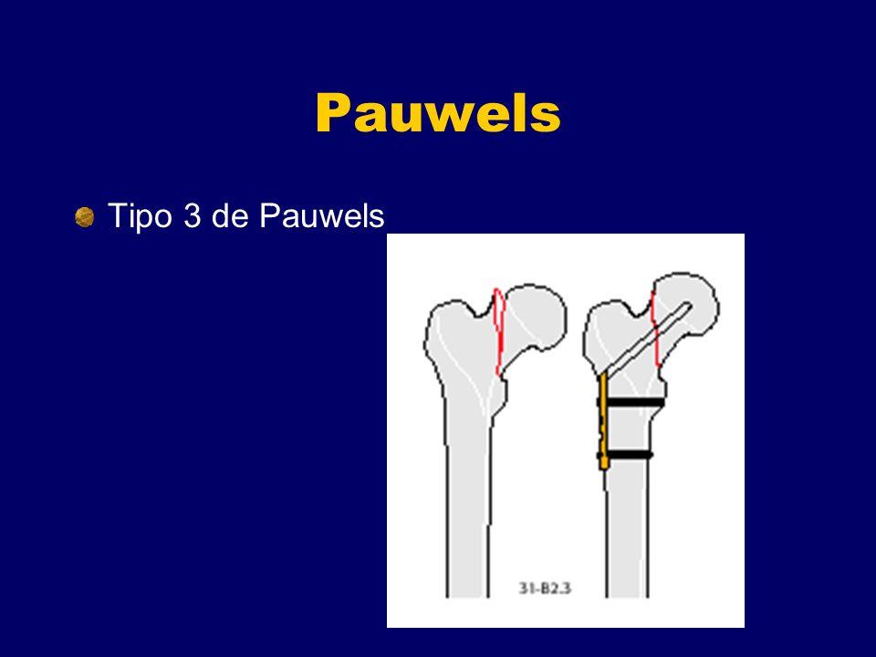 Pauwels Tipo 3 de Pauwels