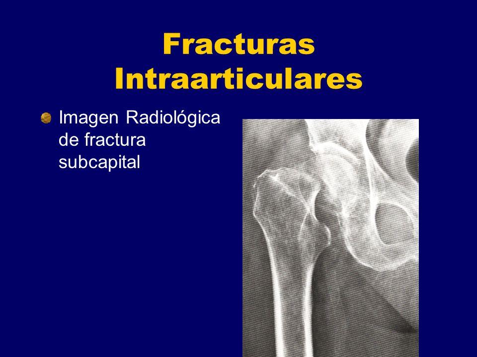 Fracturas Intraarticulares Imagen Radiológica de fractura subcapital