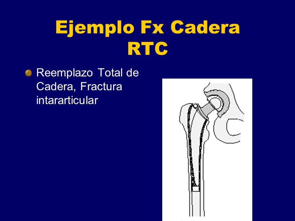 Ejemplo Fx Cadera RTC Reemplazo Total de Cadera, Fractura intararticular