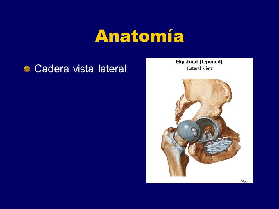 Anatomía Cadera vista lateral
