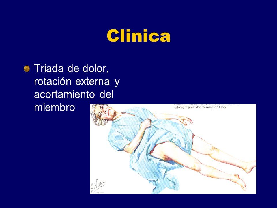 Clinica Triada de dolor, rotación externa y acortamiento del miembro
