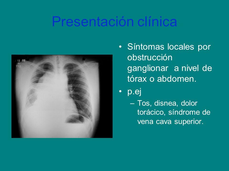 Presentación clínica Síntomas locales por obstrucción ganglionar a nivel de tórax o abdomen. p.ej –Tos, disnea, dolor torácico, síndrome de vena cava