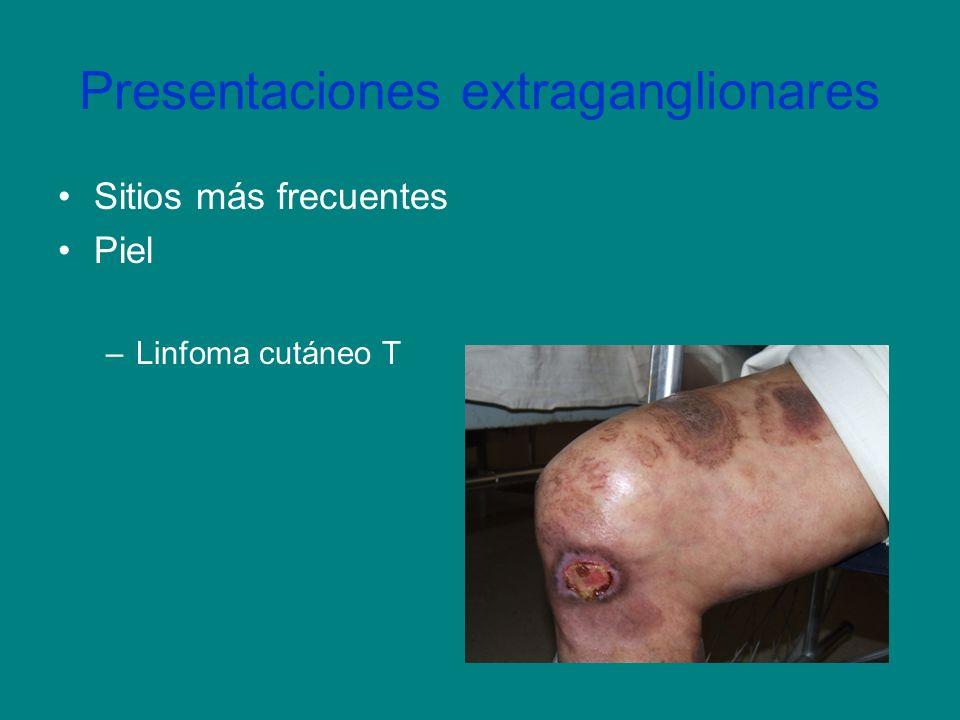 Presentaciones extraganglionares Sitios más frecuentes Piel –Linfoma cutáneo T