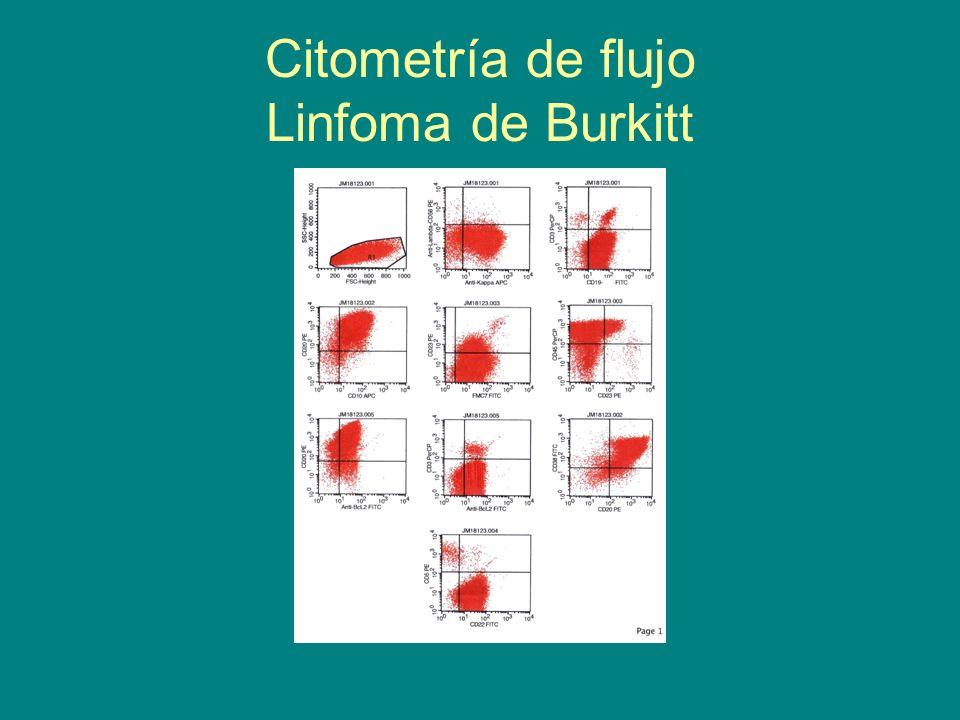 Citometría de flujo Linfoma de Burkitt