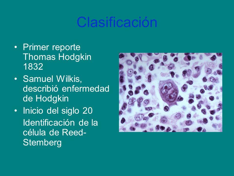 Descripción de linfoma de Hodgkin por Wilkes Un aumento gradual y progresivo de los ganglios linfáticos que suele comenzar en la región cervical y se extiende por todos los tejidos linfoides del cuerpo, formando crecimientos nodulares en los órganos internos que derivan en anemia y una caquexia generalmente letal