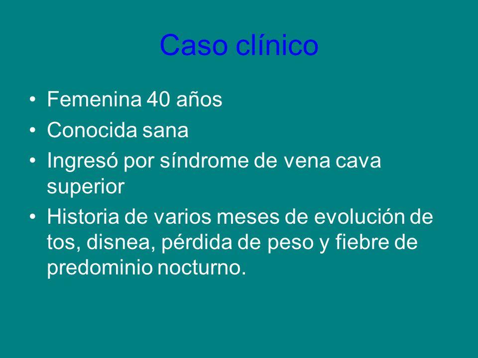Caso clínico Femenina 40 años Conocida sana Ingresó por síndrome de vena cava superior Historia de varios meses de evolución de tos, disnea, pérdida d