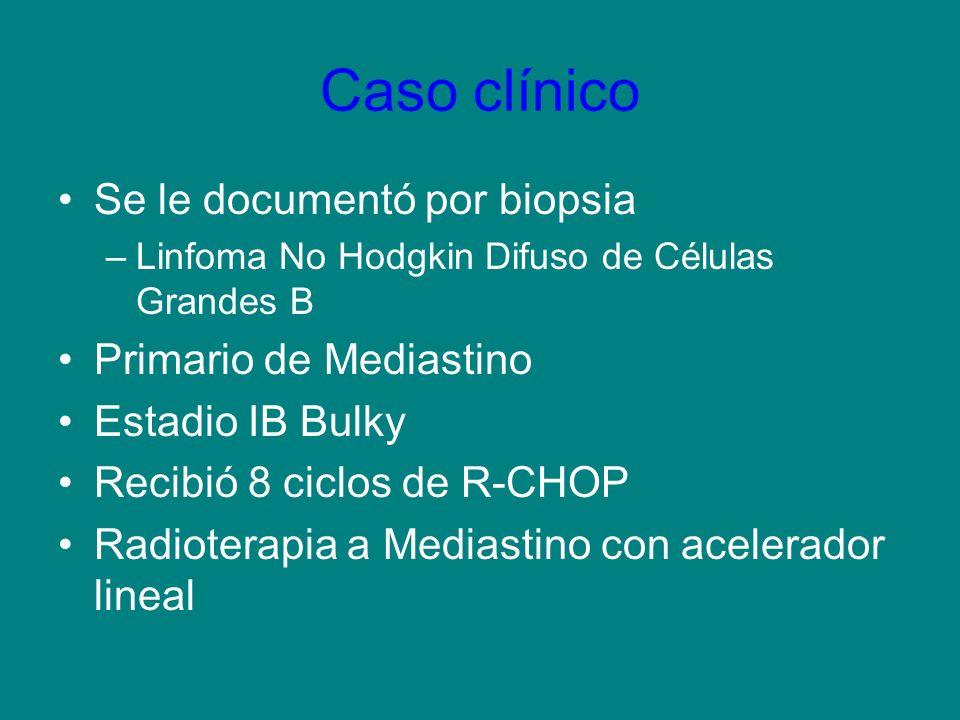 Caso clínico Se le documentó por biopsia –Linfoma No Hodgkin Difuso de Células Grandes B Primario de Mediastino Estadio IB Bulky Recibió 8 ciclos de R