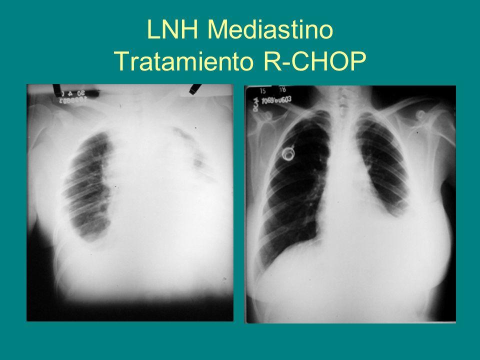 LNH Mediastino Tratamiento R-CHOP