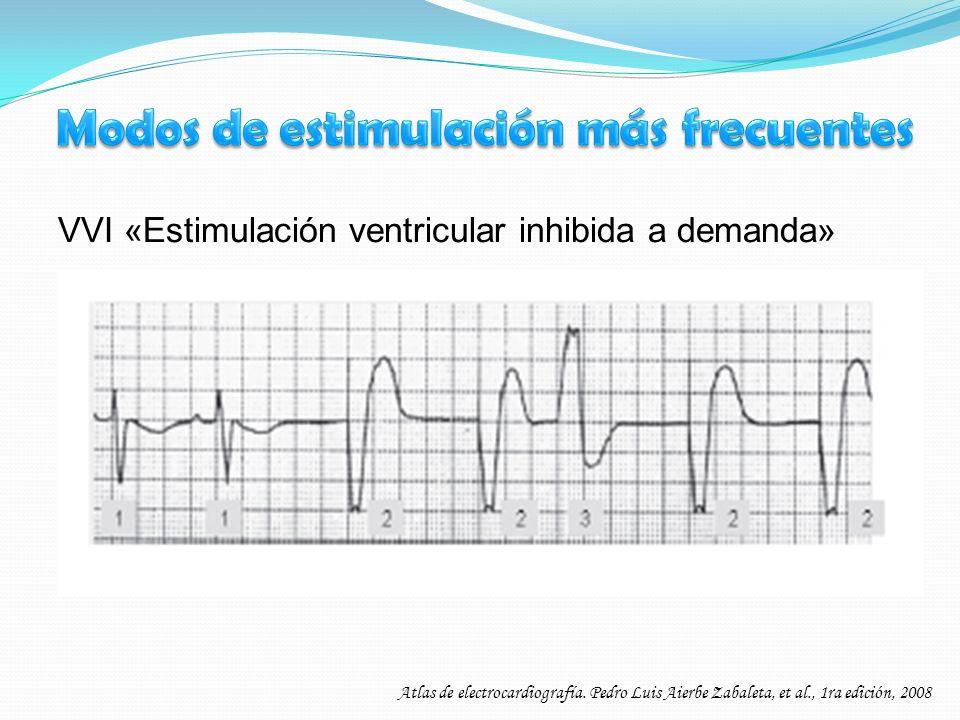 VVI «Estimulación ventricular inhibida a demanda» Atlas de electrocardiografía. Pedro Luis Aierbe Zabaleta, et al., 1ra edición, 2008