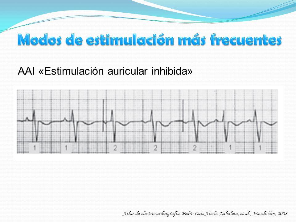AAI «Estimulación auricular inhibida» Atlas de electrocardiografía. Pedro Luis Aierbe Zabaleta, et al., 1ra edición, 2008