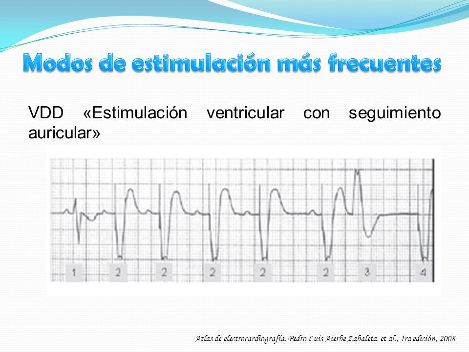 VDD «Estimulación ventricular con seguimiento auricular» Atlas de electrocardiografía. Pedro Luis Aierbe Zabaleta, et al., 1ra edición, 2008