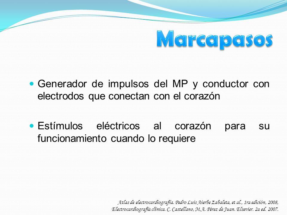 Generador de impulsos del MP y conductor con electrodos que conectan con el corazón Estímulos eléctricos al corazón para su funcionamiento cuando lo r