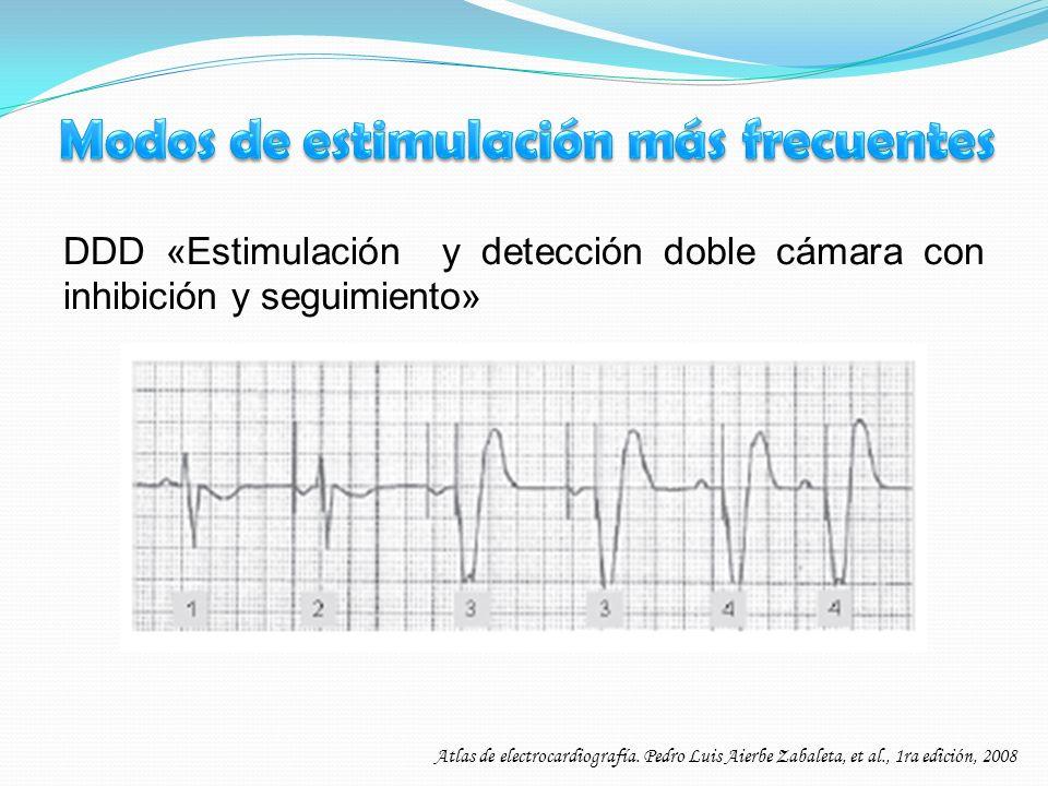 DDD «Estimulación y detección doble cámara con inhibición y seguimiento» Atlas de electrocardiografía. Pedro Luis Aierbe Zabaleta, et al., 1ra edición