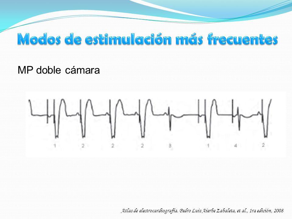 MP doble cámara Atlas de electrocardiografía. Pedro Luis Aierbe Zabaleta, et al., 1ra edición, 2008
