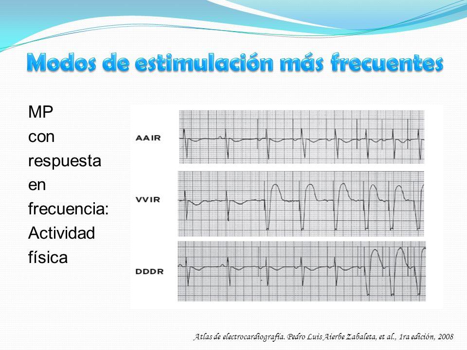 MP con respuesta en frecuencia: Actividad física Atlas de electrocardiografía. Pedro Luis Aierbe Zabaleta, et al., 1ra edición, 2008