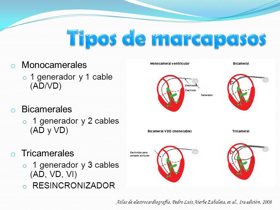 o Monocamerales o 1 generador y 1 cable (AD/VD) o Bicamerales o 1 generador y 2 cables (AD y VD) o Tricamerales o 1 generador y 3 cables (AD, VD, VI)