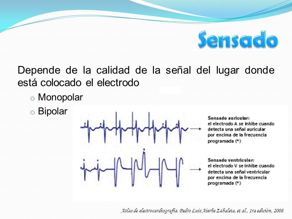 Depende de la calidad de la señal del lugar donde está colocado el electrodo o Monopolar o Bipolar Atlas de electrocardiografía. Pedro Luis Aierbe Zab