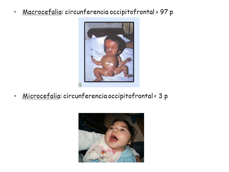 Macrocefalia: circunferencia occipitofrontal > 97 p Microcefalia: circunferencia occipitofrontal < 3 p