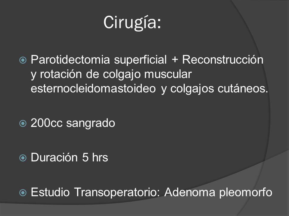 Cirugía: Parotidectomia superficial + Reconstrucción y rotación de colgajo muscular esternocleidomastoideo y colgajos cutáneos. 200cc sangrado Duració