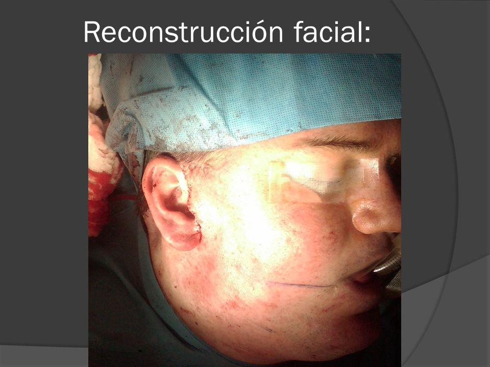 Reconstrucción facial: