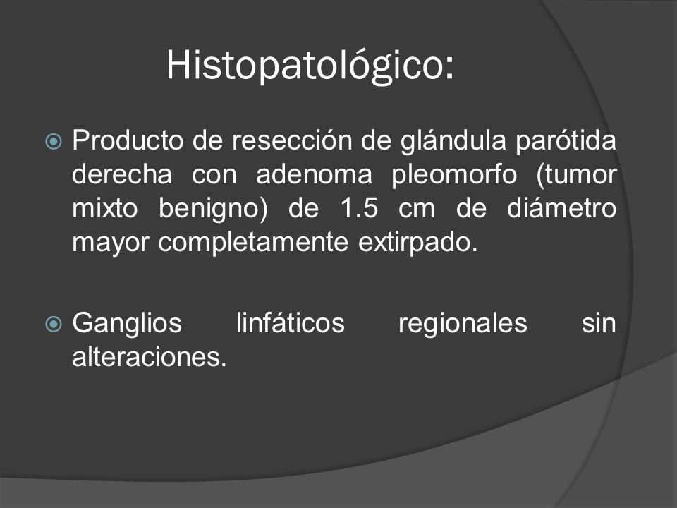 Histopatológico: Producto de resección de glándula parótida derecha con adenoma pleomorfo (tumor mixto benigno) de 1.5 cm de diámetro mayor completame