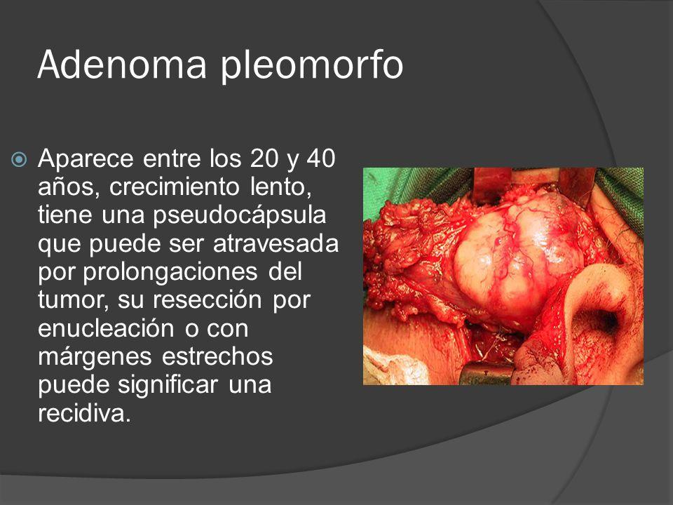 Adenoma pleomorfo Aparece entre los 20 y 40 años, crecimiento lento, tiene una pseudocápsula que puede ser atravesada por prolongaciones del tumor, su
