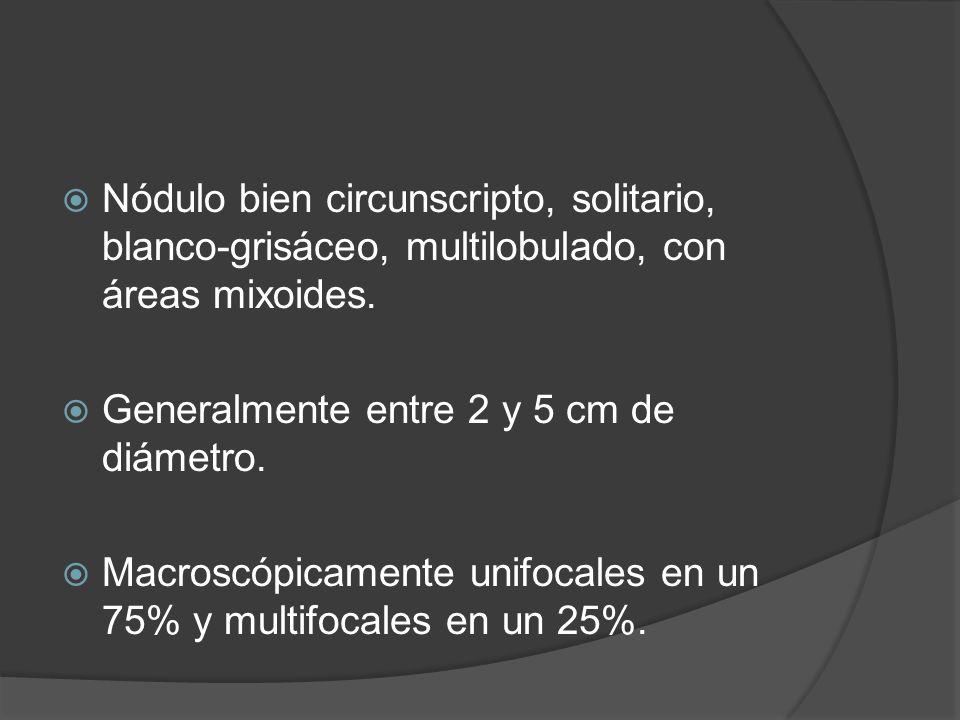 Nódulo bien circunscripto, solitario, blanco-grisáceo, multilobulado, con áreas mixoides. Generalmente entre 2 y 5 cm de diámetro. Macroscópicamente u