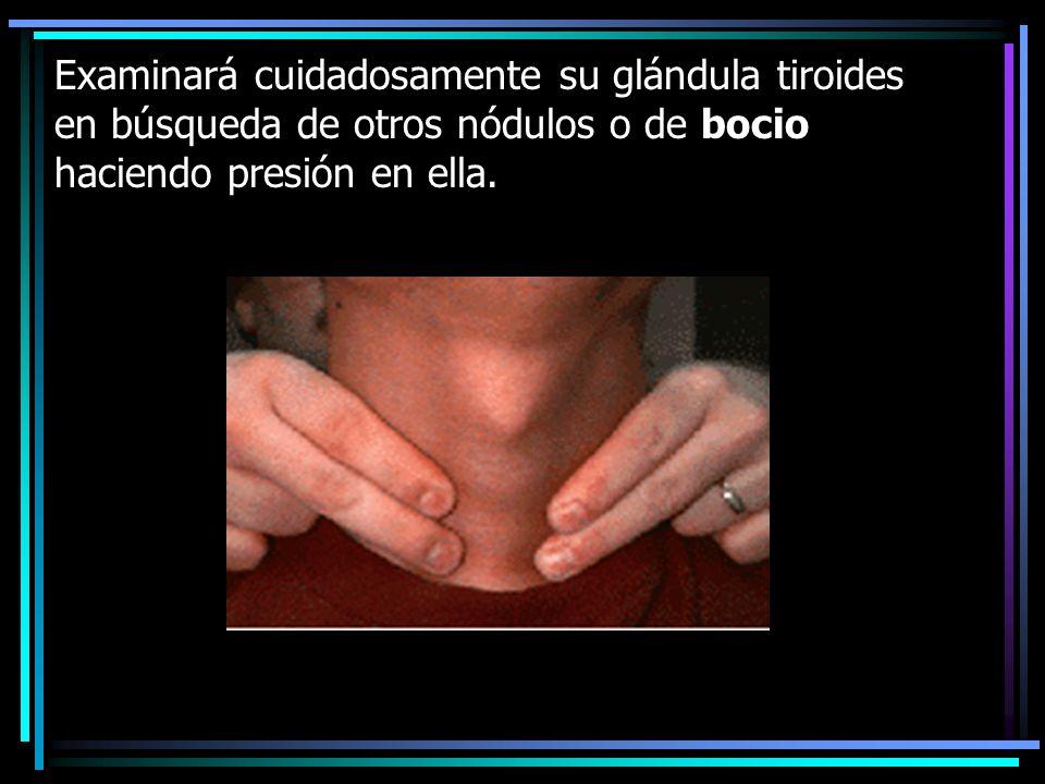 Examinará cuidadosamente su glándula tiroides en búsqueda de otros nódulos o de bocio haciendo presión en ella.