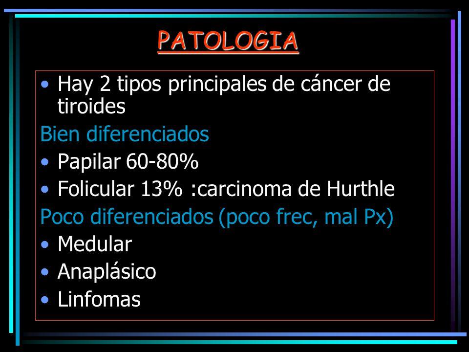 PATOLOGIA Hay 2 tipos principales de cáncer de tiroides Bien diferenciados Papilar 60-80% Folicular 13% :carcinoma de Hurthle Poco diferenciados (poco