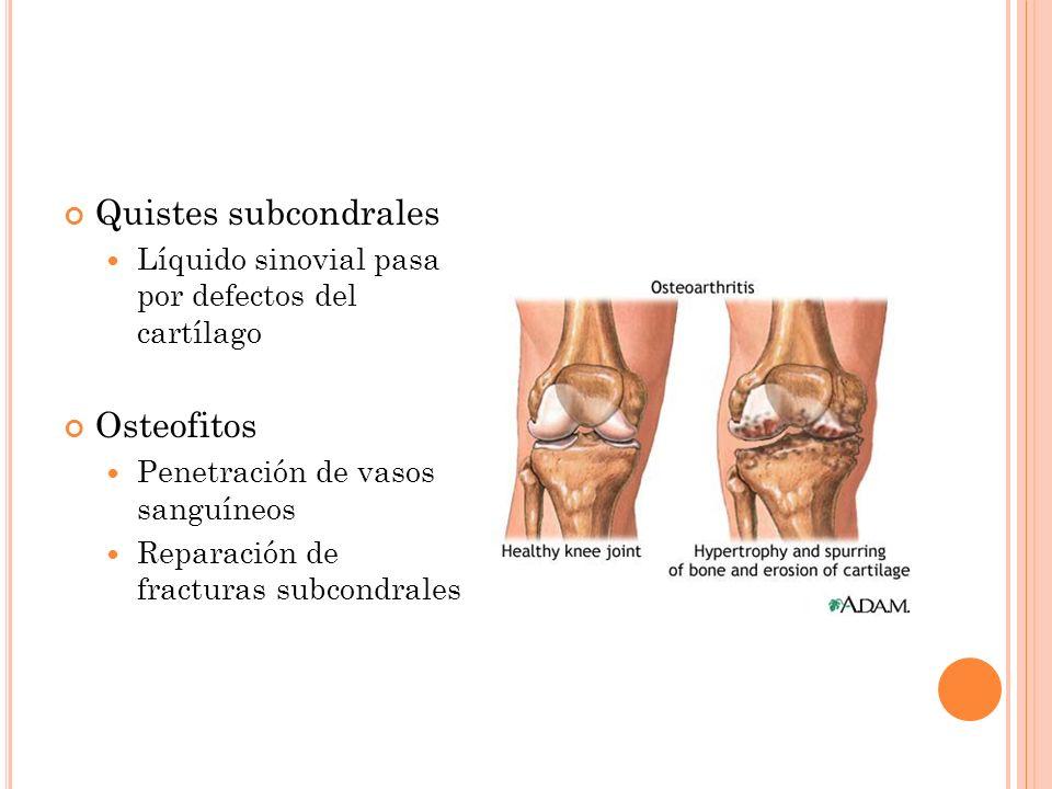 Quistes subcondrales Líquido sinovial pasa por defectos del cartílago Osteofitos Penetración de vasos sanguíneos Reparación de fracturas subcondrales