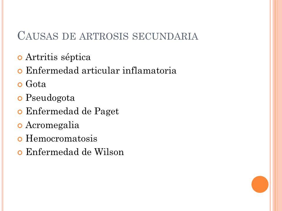 C AUSAS DE ARTROSIS SECUNDARIA Artritis séptica Enfermedad articular inflamatoria Gota Pseudogota Enfermedad de Paget Acromegalia Hemocromatosis Enfer