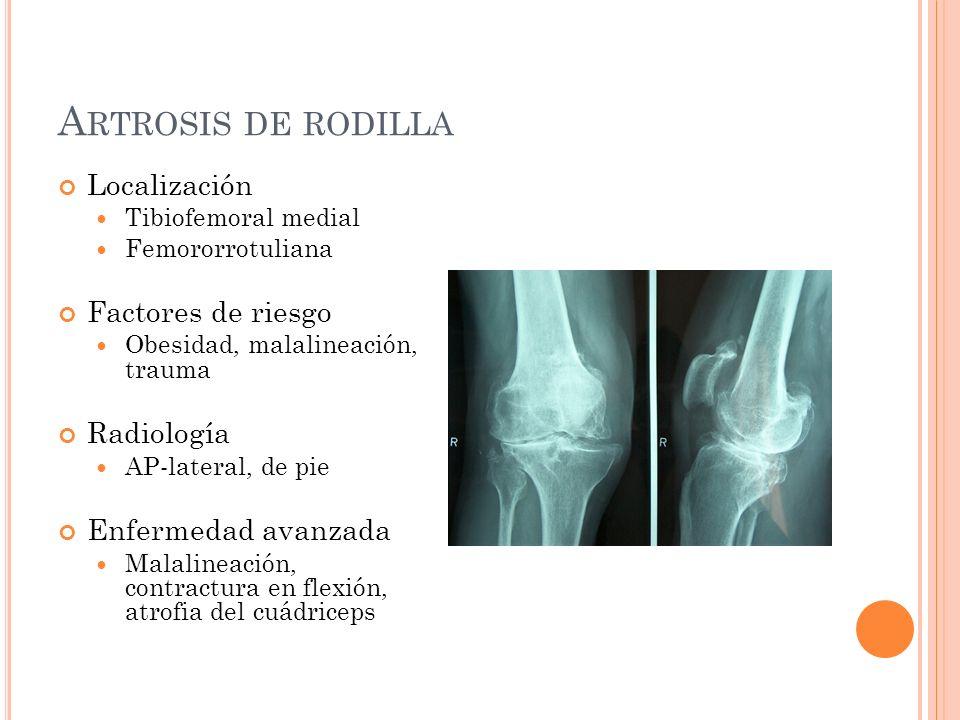 A RTROSIS DE RODILLA Localización Tibiofemoral medial Femororrotuliana Factores de riesgo Obesidad, malalineación, trauma Radiología AP-lateral, de pi