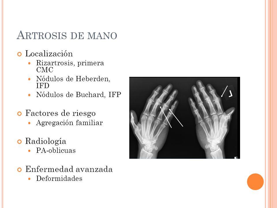 A RTROSIS DE MANO Localización Rizartrosis, primera CMC Nódulos de Heberden, IFD Nódulos de Buchard, IFP Factores de riesgo Agregación familiar Radiol