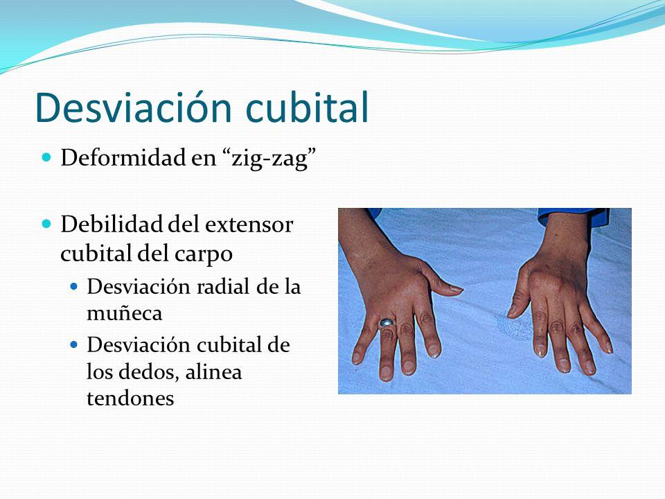 Desviación cubital Deformidad en zig-zag Debilidad del extensor cubital del carpo Desviación radial de la muñeca Desviación cubital de los dedos, alin