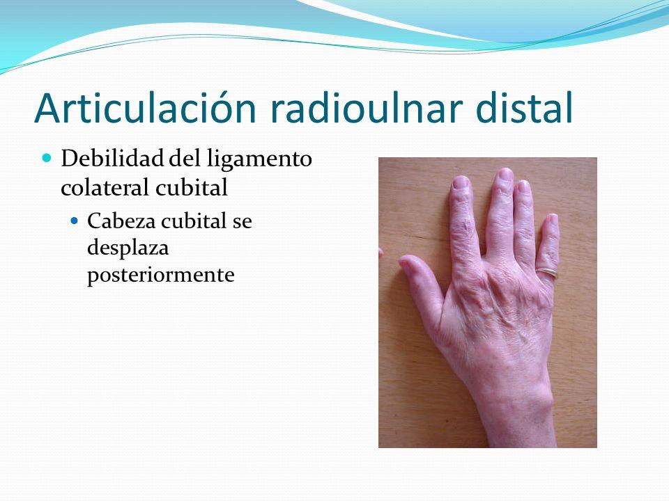 Articulación radioulnar distal Debilidad del ligamento colateral cubital Cabeza cubital se desplaza posteriormente