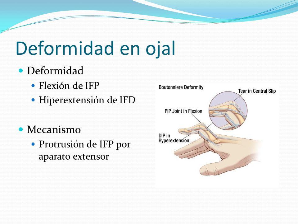 Deformidad en ojal Deformidad Flexión de IFP Hiperextensión de IFD Mecanismo Protrusión de IFP por aparato extensor