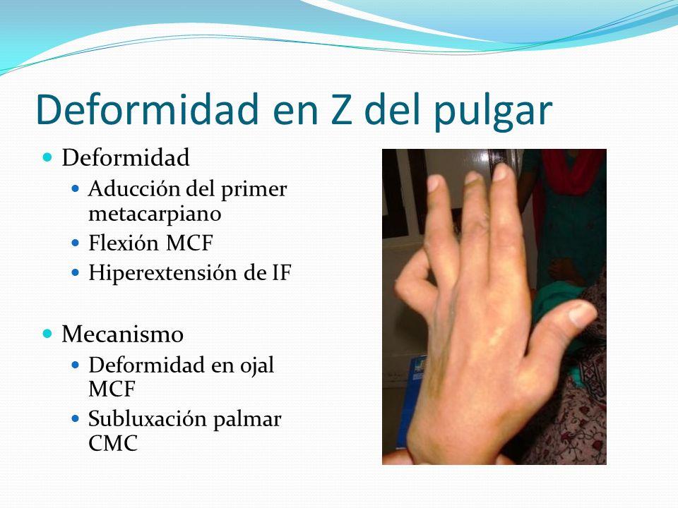 Deformidad en Z del pulgar Deformidad Aducción del primer metacarpiano Flexión MCF Hiperextensión de IF Mecanismo Deformidad en ojal MCF Subluxación p