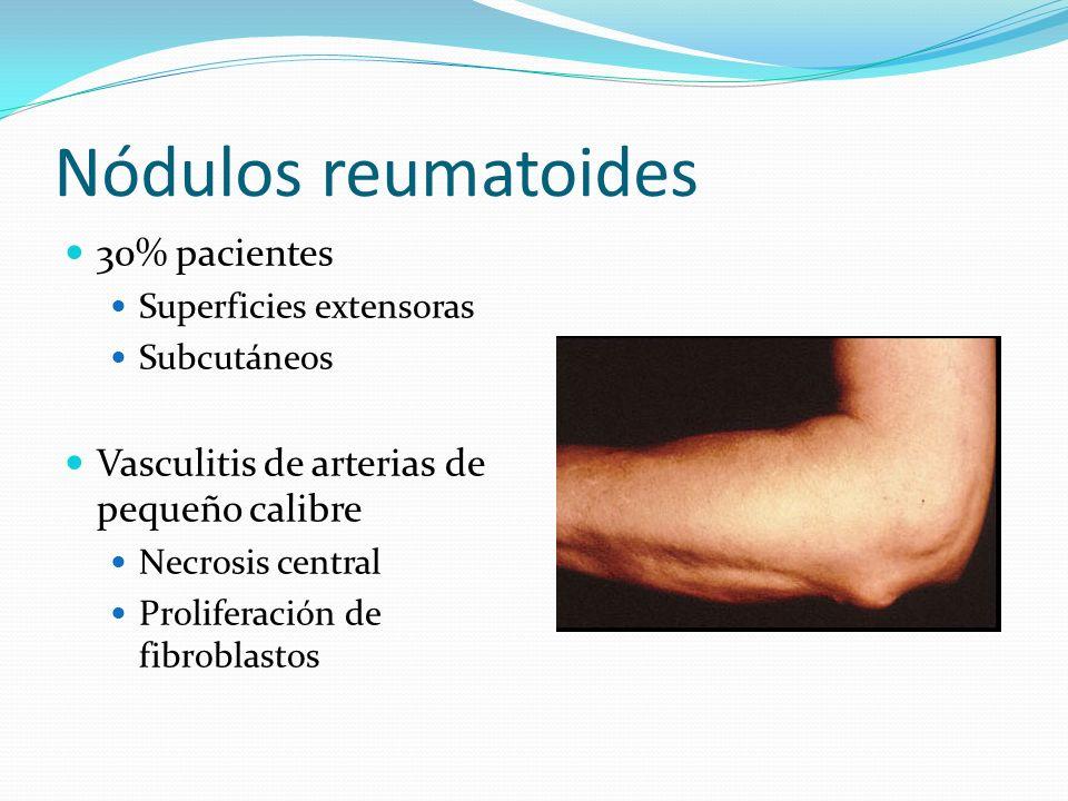 Nódulos reumatoides 30% pacientes Superficies extensoras Subcutáneos Vasculitis de arterias de pequeño calibre Necrosis central Proliferación de fibro