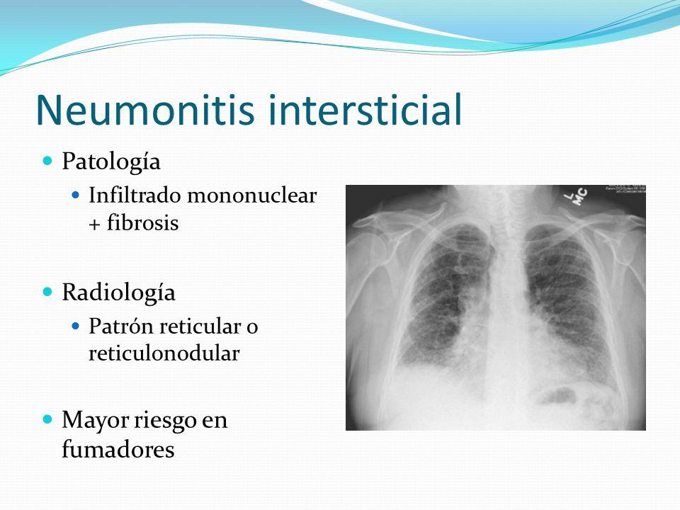 Neumonitis intersticial Patología Infiltrado mononuclear + fibrosis Radiología Patrón reticular o reticulonodular Mayor riesgo en fumadores