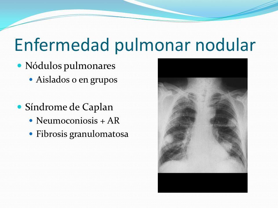 Enfermedad pulmonar nodular Nódulos pulmonares Aislados o en grupos Síndrome de Caplan Neumoconiosis + AR Fibrosis granulomatosa