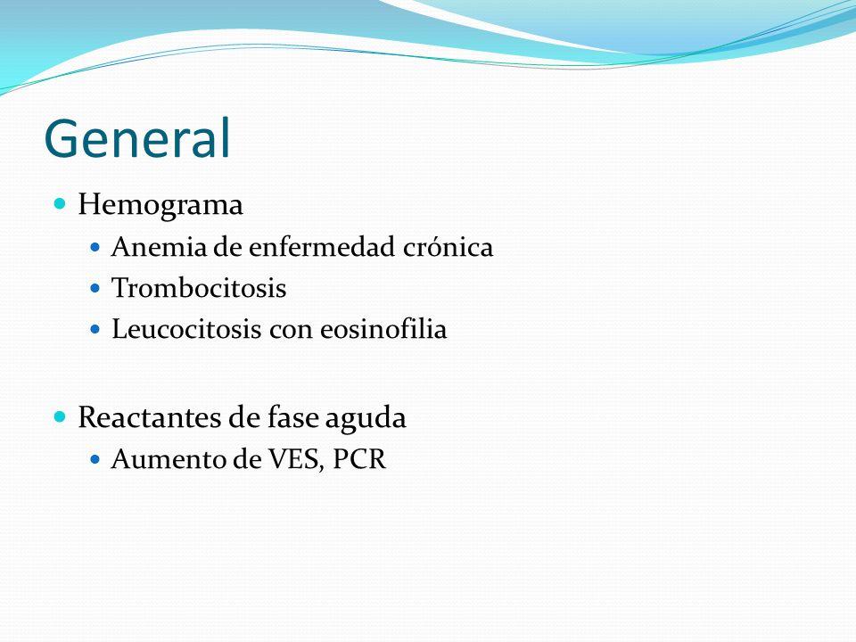General Hemograma Anemia de enfermedad crónica Trombocitosis Leucocitosis con eosinofilia Reactantes de fase aguda Aumento de VES, PCR
